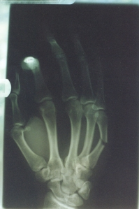 BrokenFinger